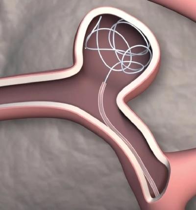 Steerable Catheter
